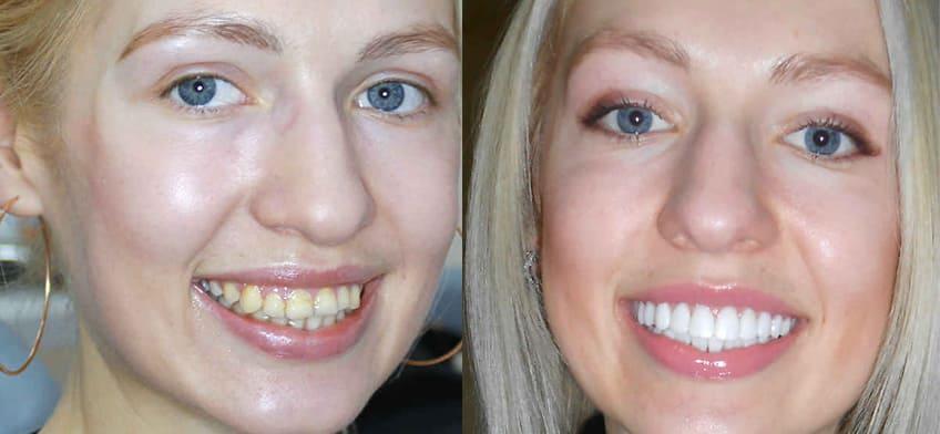 протезирование фото зубов