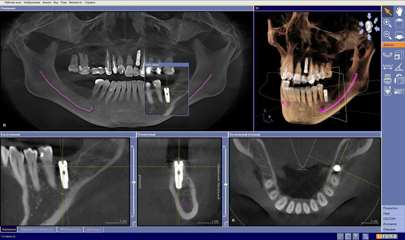 компьютерная томография, зубы. г.Оерл