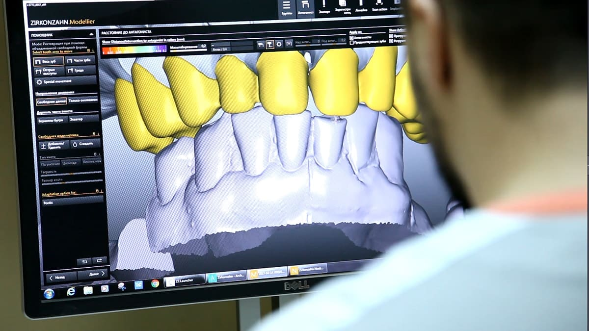 cad cam report Based on the hybrid-ceramic dental cad/cam material industrial chain, this report mainly elaborate the definition, types, applications and major players of hybrid-ceramic dental cad/cam material market in details.