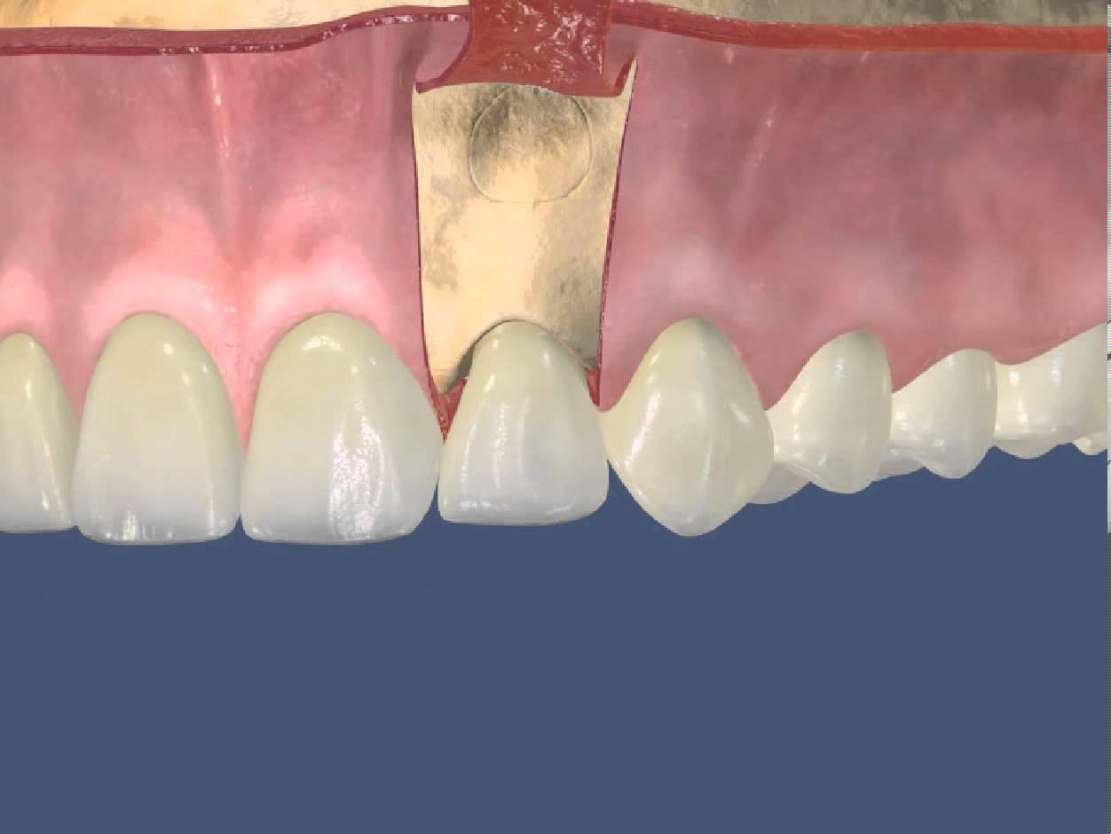 виниры на искривленные зубы